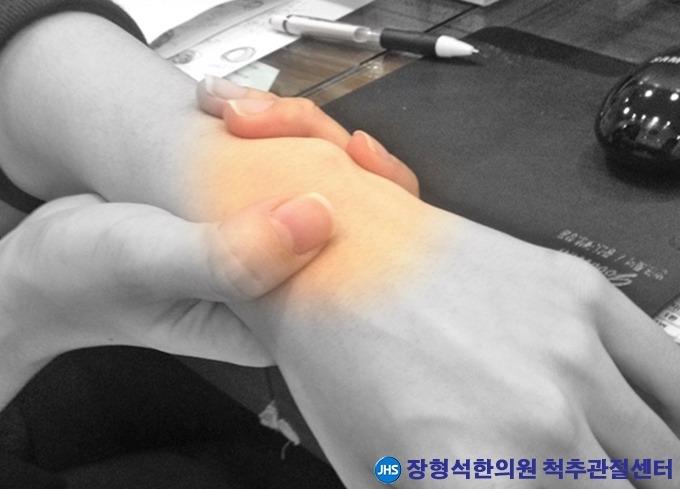 [손목디스크] 삼각섬유연골파열 원인과 증상, 치료법